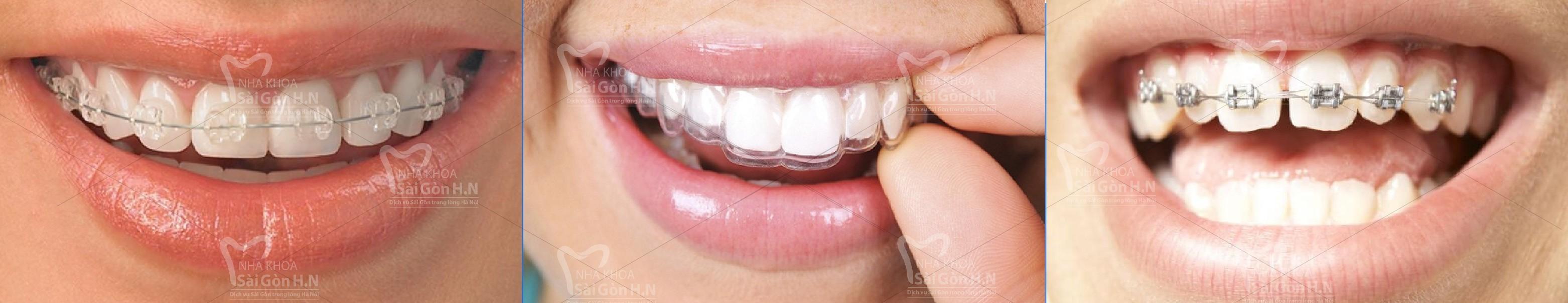 Cách khắc phục thưa răng cửa tại Nha khoa Sài Gòn H.N