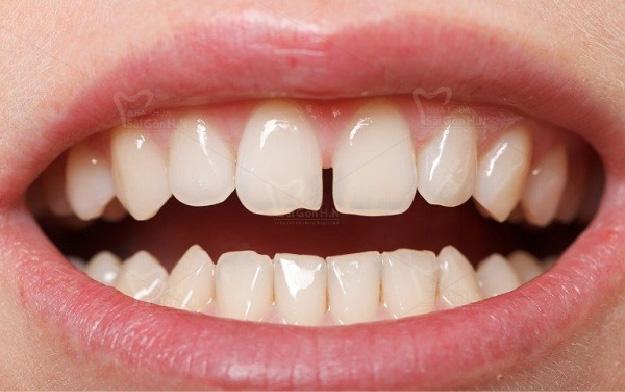 Cách khắc phục răng cửa thưa tại Nha khoa Sài Gòn H.N