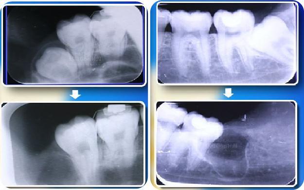 Nhổ răng khôn xong cần kiêng những gì