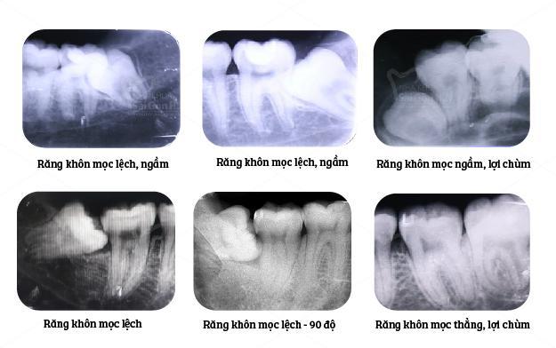 Nhổ răng khôn có đau như bạn nghĩ