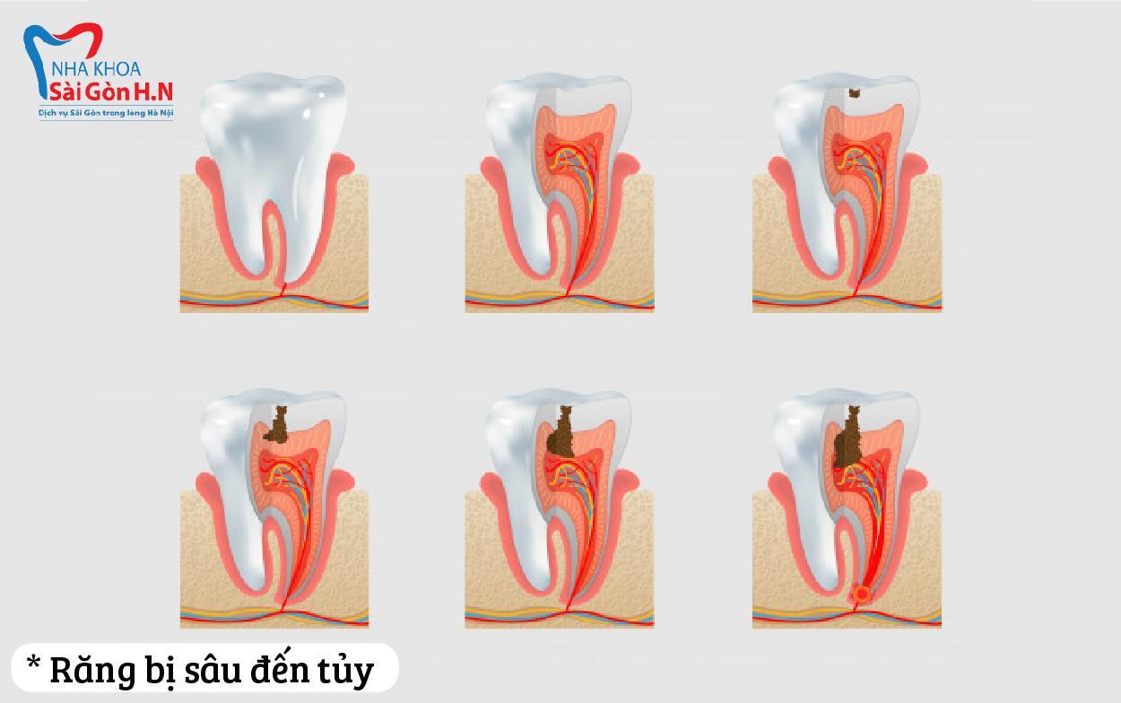 Sau khi điều trị xong nên bọc răng sứ