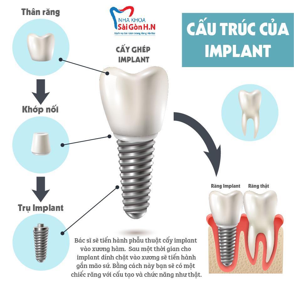 Kiến thức cơ bản về trồng răng implant