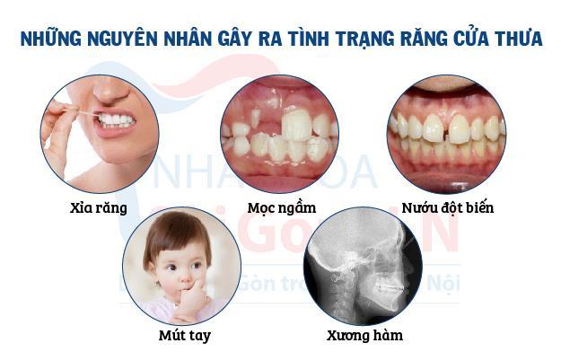 Cách khách phục răng của thưa tại Nha khoa Sài Gòn H.N