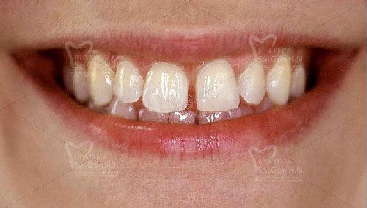 Cách khắc phục răng cửa thưa tai Nha khoa Sài Gòn H.N
