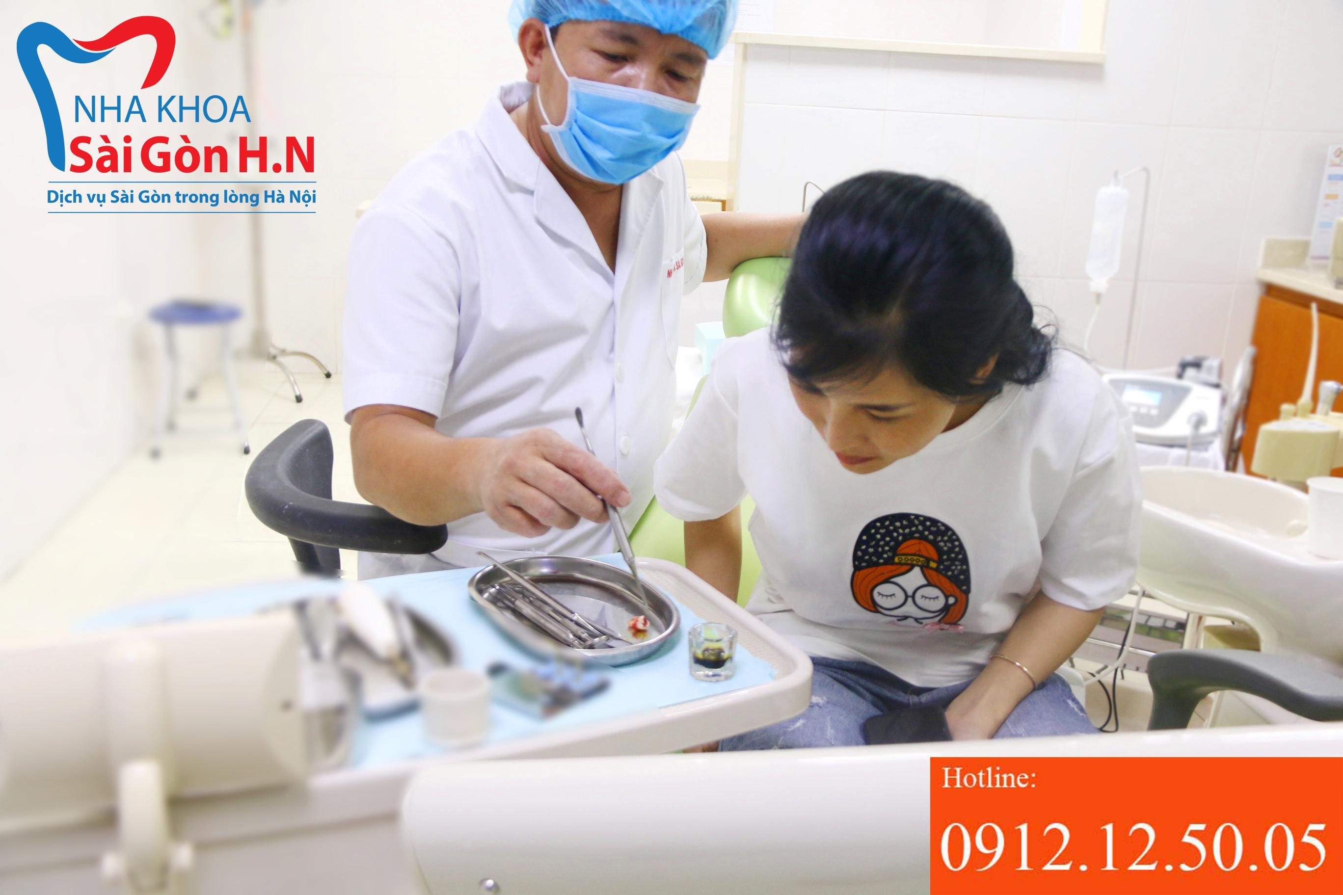 Răng khôn bị viêm có được nhổ không?