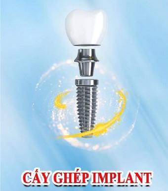Quy trình trồng răng Implant tại Nha khoa Sài Gòn H.N