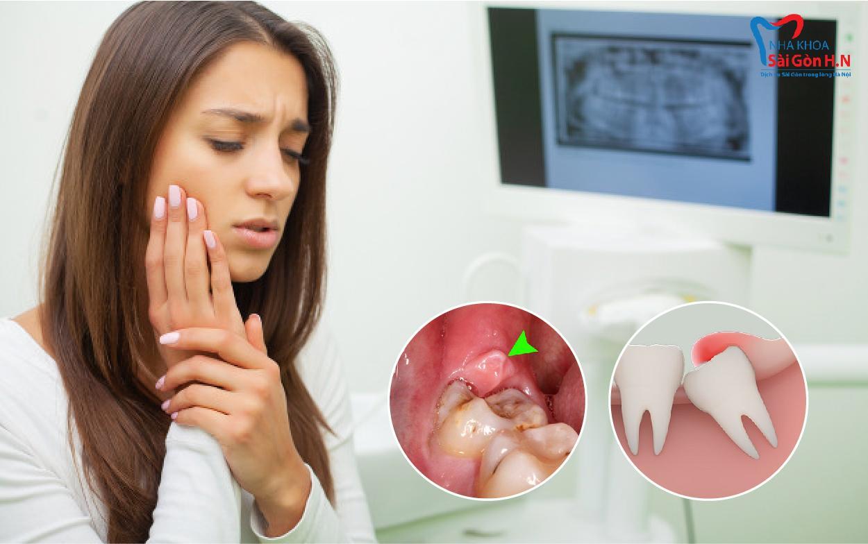 Biểu hiện và tác hại của răng khôn