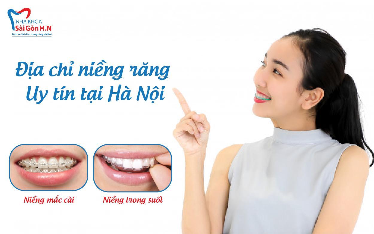 Nha khoa Sài Gòn H.N - địa chỉ niềng răng uy tín tại Hà Nội