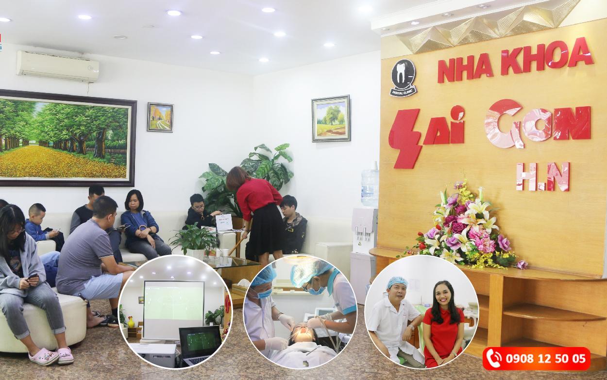 Tại Hà Nội niềng răng ở đâu uy tín