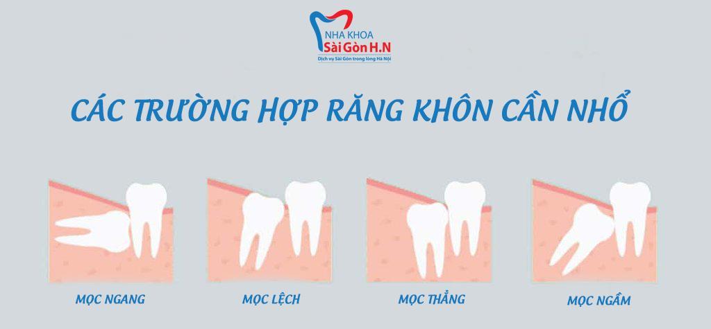 Nhổ răng khôn không đau với máy Piezotome tại Nha khoa Sài Gòn H.N