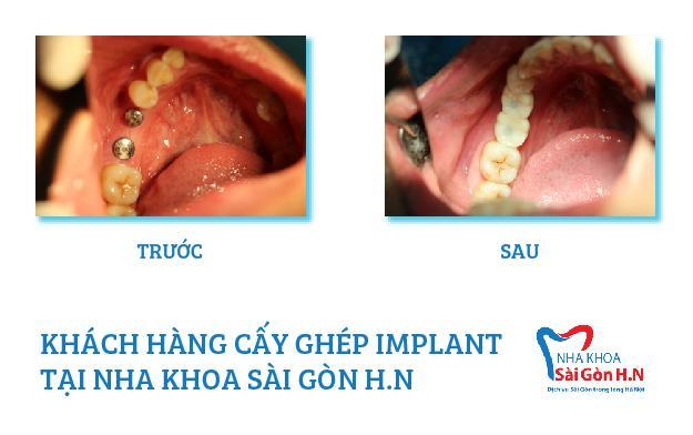 Tại sao người lớn tuổi cần phải trồng răng Implant
