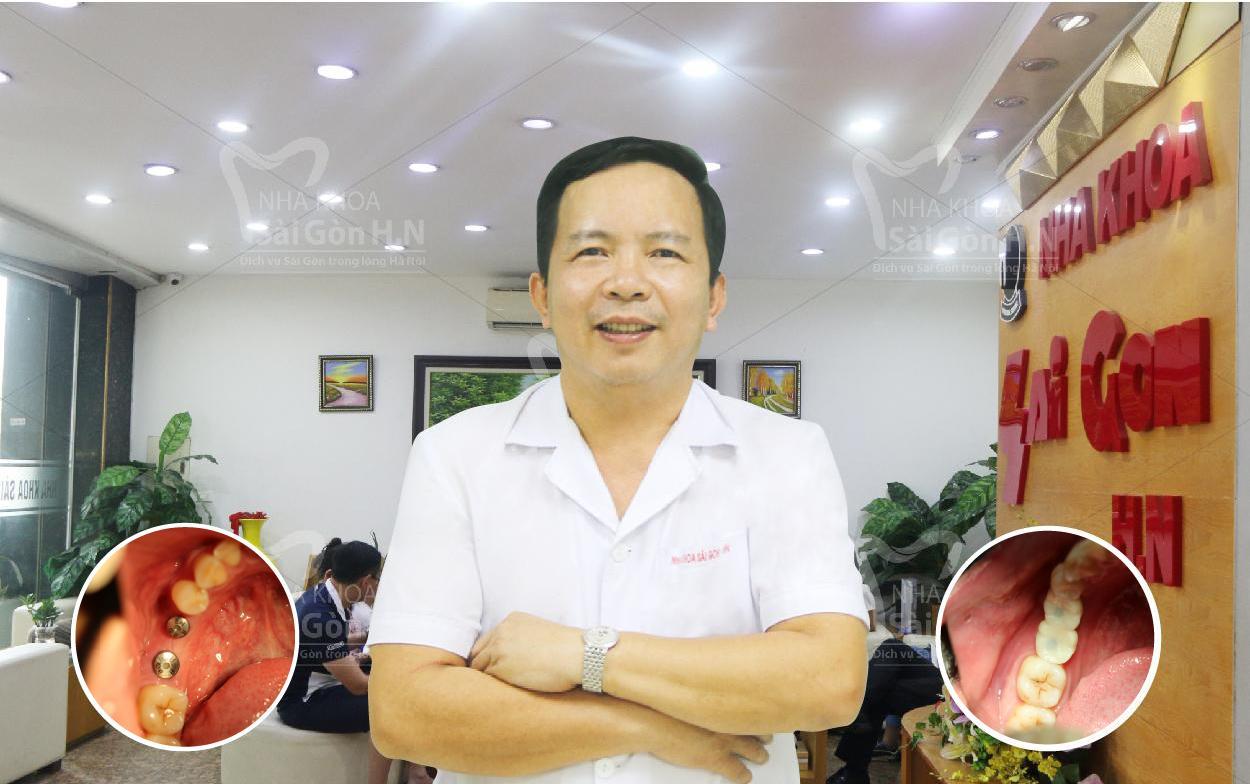 Trồng răng Implant uy tín tại  Nha khoa Sài Gòn H.N