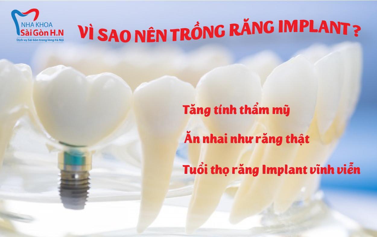 Công nghệ trồng răng Implant hiện đại