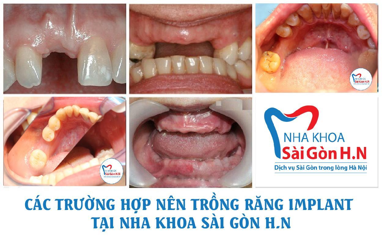 Công nghệ trồng răng Implant hiện đại tại Nha khoa Sài Gòn H.N