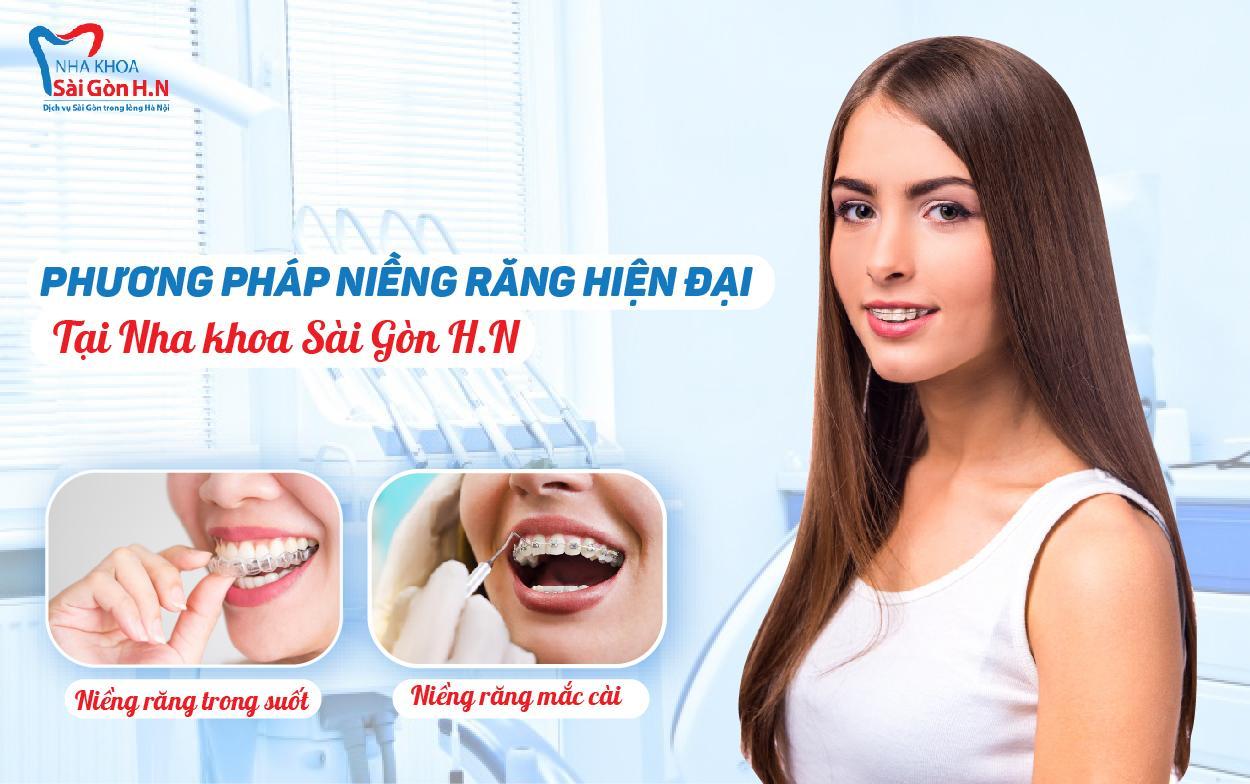Phương pháp niềng răng hiện đại tại Nha khoa Sài Gòn H.N