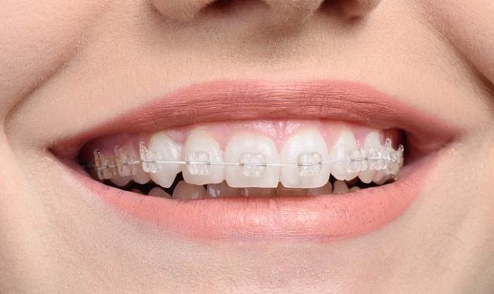 Những phương pháp niềng răng hiện đại