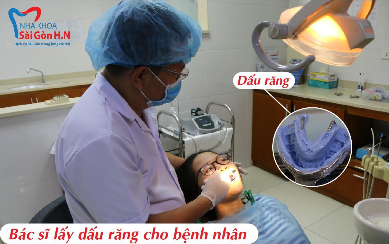 Bọc răng sứ tại nha khoa Sài Gòn H.N có lâu không