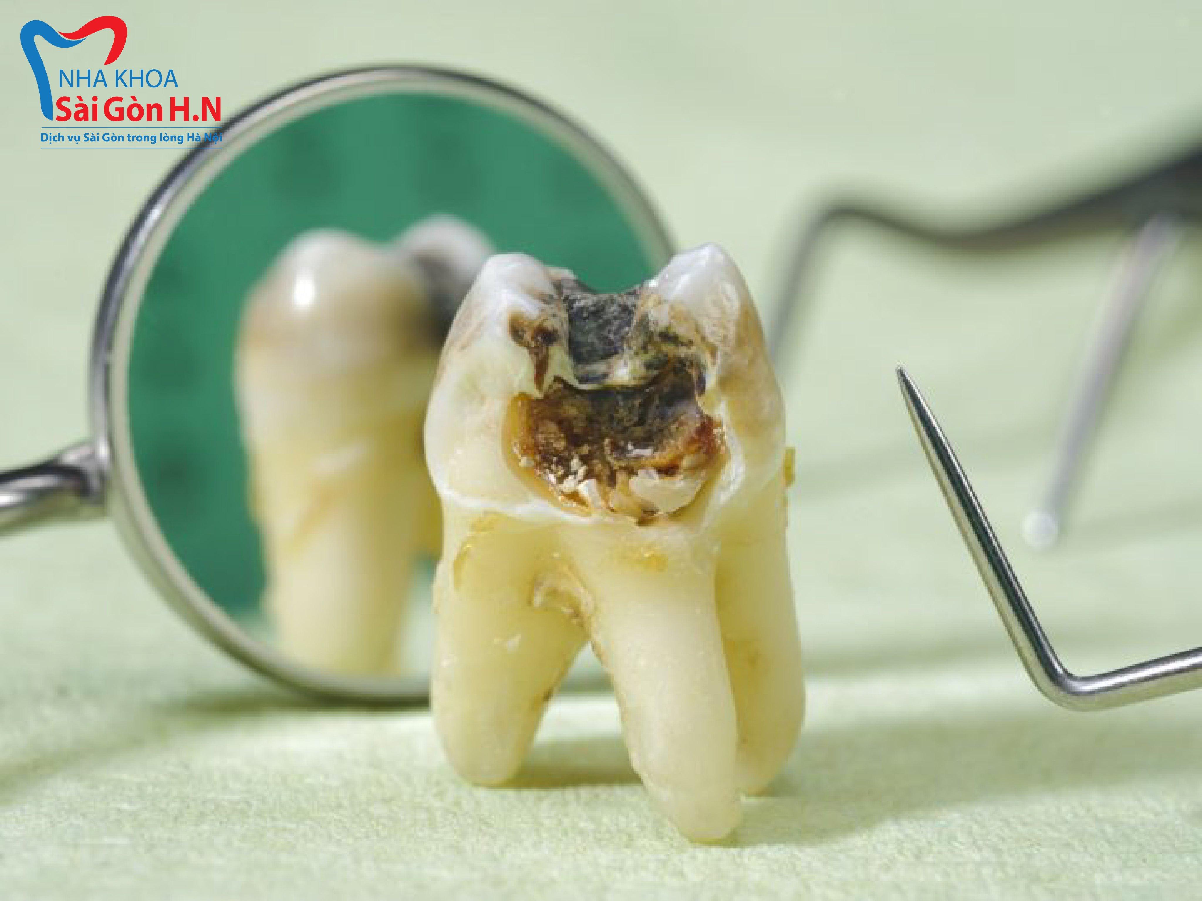 Hình ảnh thực tế khi răng bị sâu