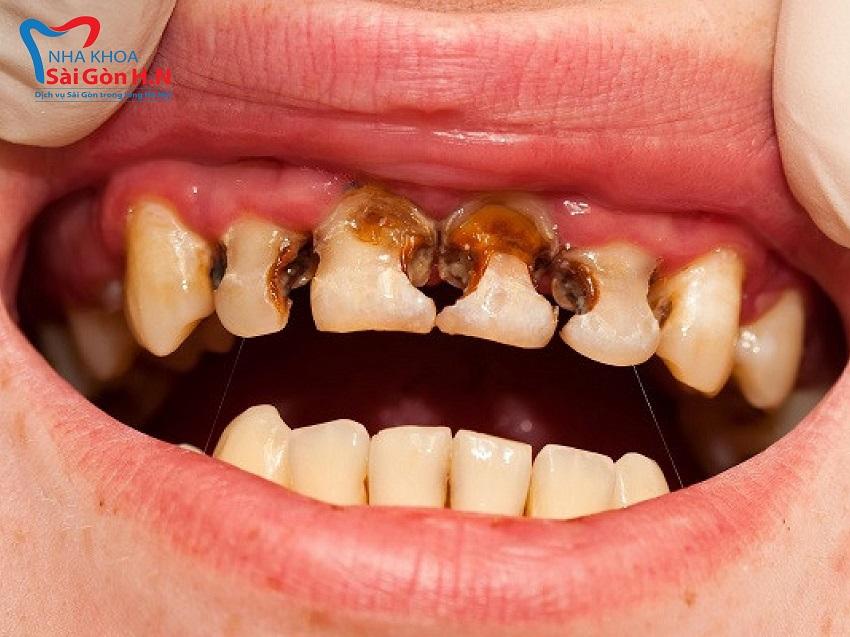 Hình ảnh thiếu thẩm mỹ khi răng bị sâu