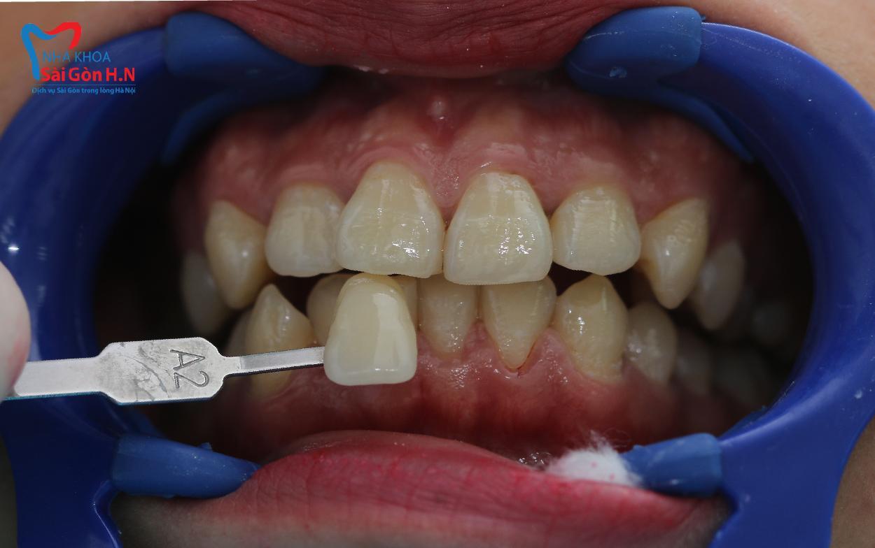 Công nghệ tẩy trắng răng Laser Whitening