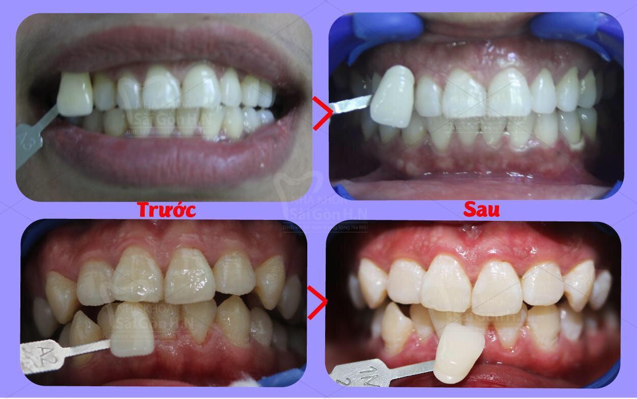 Tẩy trắng răng bằng công nghệ BEONY WHITENING
