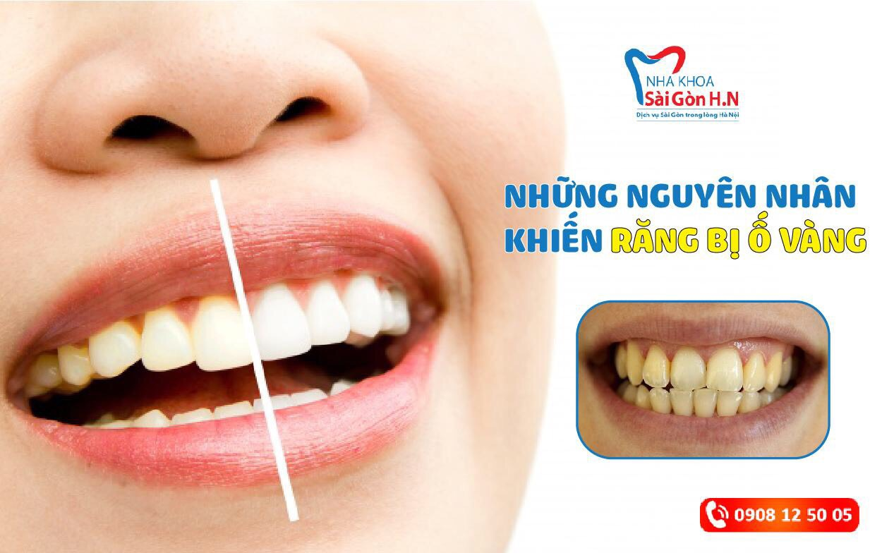 Răng bị ố vàng là do đâu