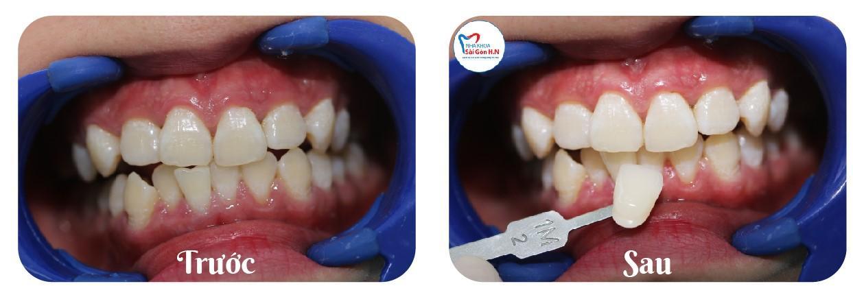 Tẩy trắng răng bằng công nghệ hiện đại