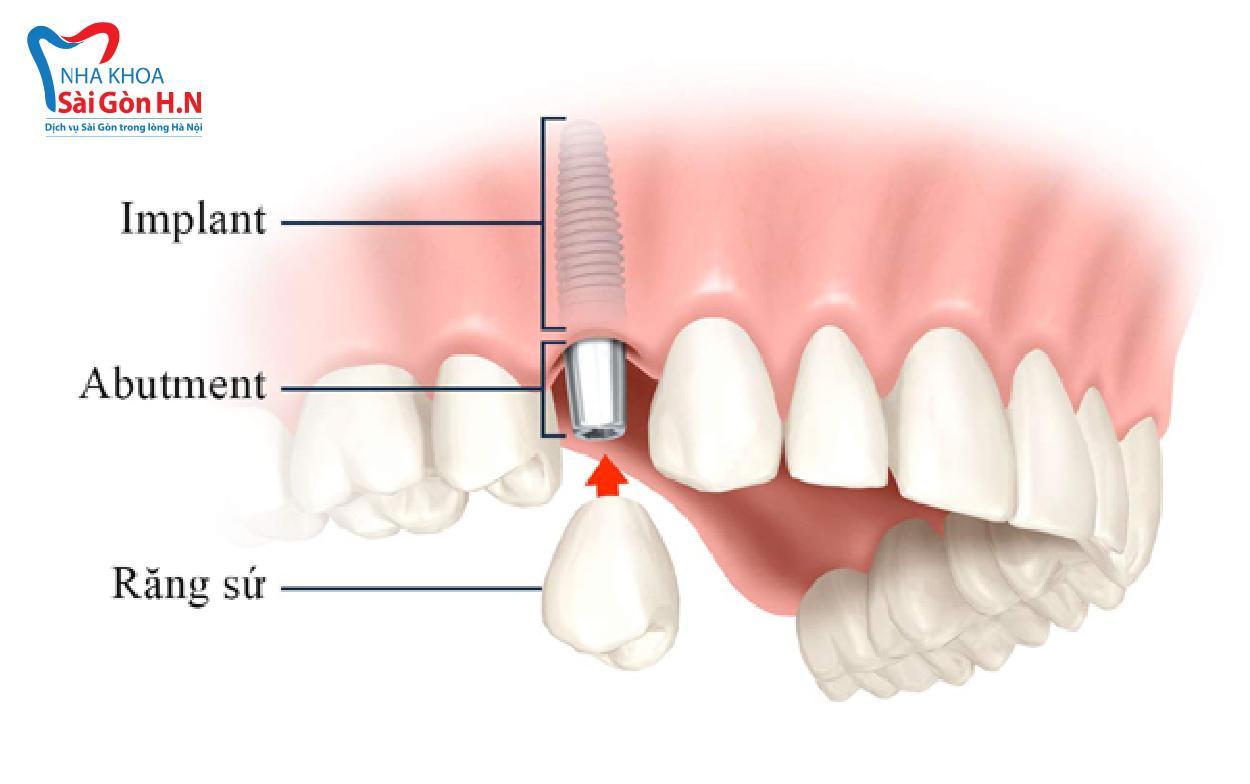 Chi phí trồng răng Implant tại Nha khoa Sài Gòn H.N