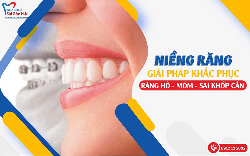 niềng răng luôn là giải pháp tốt khiến hàm răng trở nên đẹp hơn